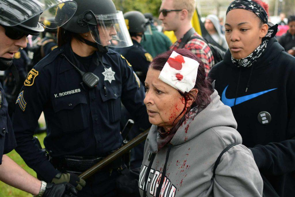 A woman with injuries to her head approach Berkeley Police during a rally at MLK Park in Berkeley, Calif. on Saturday, Mar. 4, 2017.