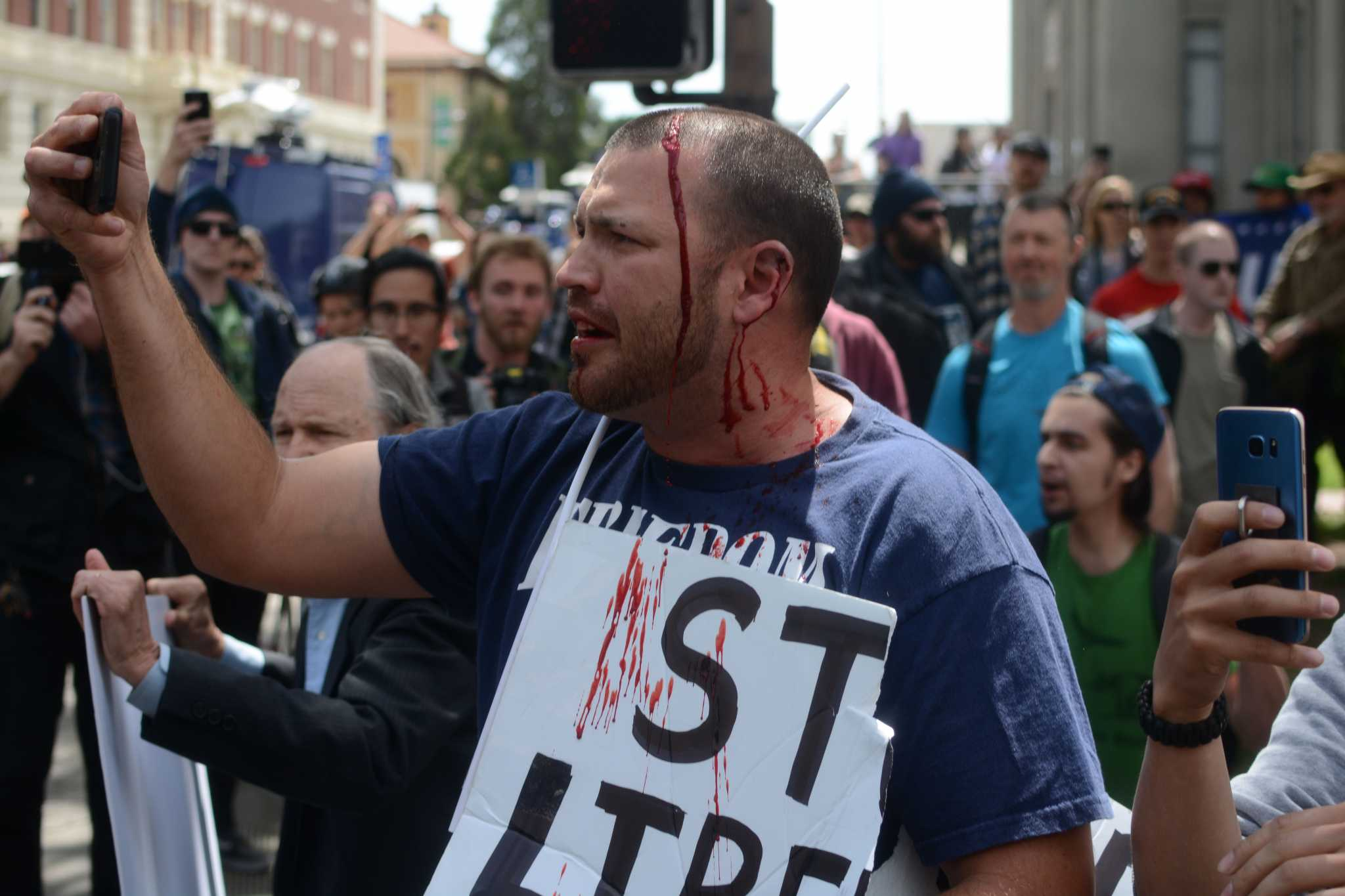 A bleeding right-wing protester records video of himself at the corner of Center and Milvia Streets in Berkeley, Calif. on Saturday, Apr. 15, 2017. Antifa anarchists and alt-right groups clashed in a riot Saturday (Aaron Levy-Wolins/ Xpress).