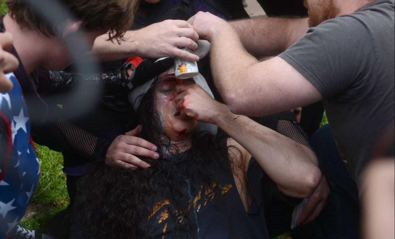 People pour milk into the eyes of a pepper-sprayed right-wing protester at the corner of Center and Milvia Streets in Berkeley, Calif. on Saturday, Apr. 15, 2017. Antifa anarchists and alt-right groups clashed in a riot Saturday.